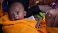 UNICEF raporuna göre 16 milyon bebek ölüm riski altında !