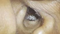Hintli kadının kulağından örümcek çıktı