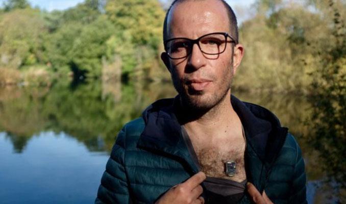 Biyo-hackerlar: Vücutlarına çip taktırıyor