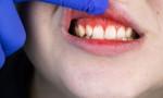 Diş eti hastalığı olan pozitif vakaların ölüm oranı korkutuyor!