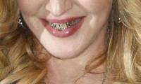 Altın diş modası hızla yayılıyor