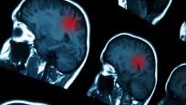 Beyin kanserleri neden gittikçe artıyor?