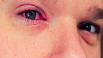 Her kırmızı göz, korona virüs göstergesi değildir