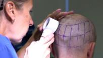 Kovid-19 saç dökülmesi şikayetlerini artırdı