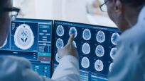 Bilim insanlarından yeni uyarı: Korona virüs bağlantılı beyin hasarı