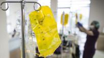 Gizli akciğer kanseri vakaları pandemide 5 kat arttı!
