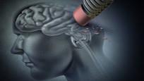 Alzheimer için korkutan uyarı: 2050'de Türkiye 4'üncü sırada!