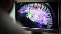 Araştırma: Korona zihin fonksiyonlarını geriletiyor mu?