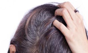 Saç beyazlamasını geciktirmenin yolu