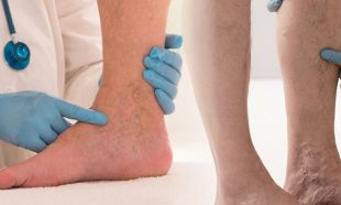 Yürürken gelen bacak ağrısı öldürebilir