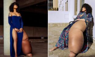 Hastalığını dünyayla paylaştı! Tek bacağı 45 kilo...