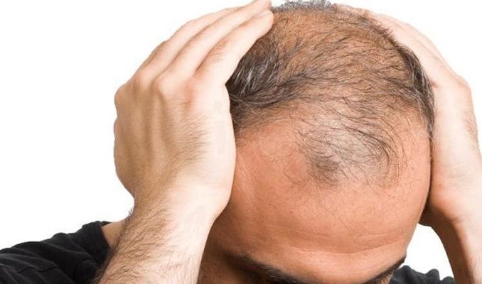 Sarımsak gerçekten saç çıkarır mı?