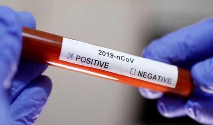 Korona virüs için patent tartışması