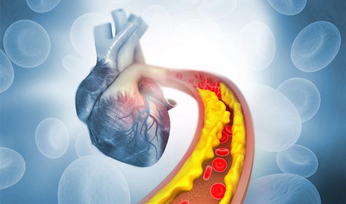 Kolesterolünüz yükseldiğinde ne yapabilirsiniz?
