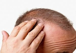 Saç dökülmesine doğal çözüm